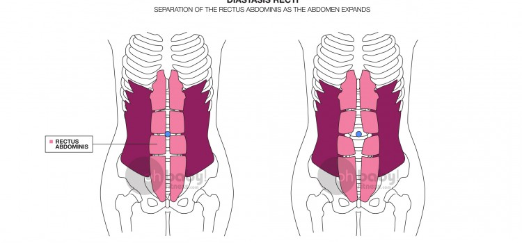 The Basics of Abdominal Separation/Diastasis Recti